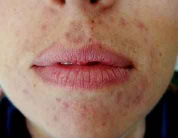 Rash around the mouth or perioral dermatitis, common in